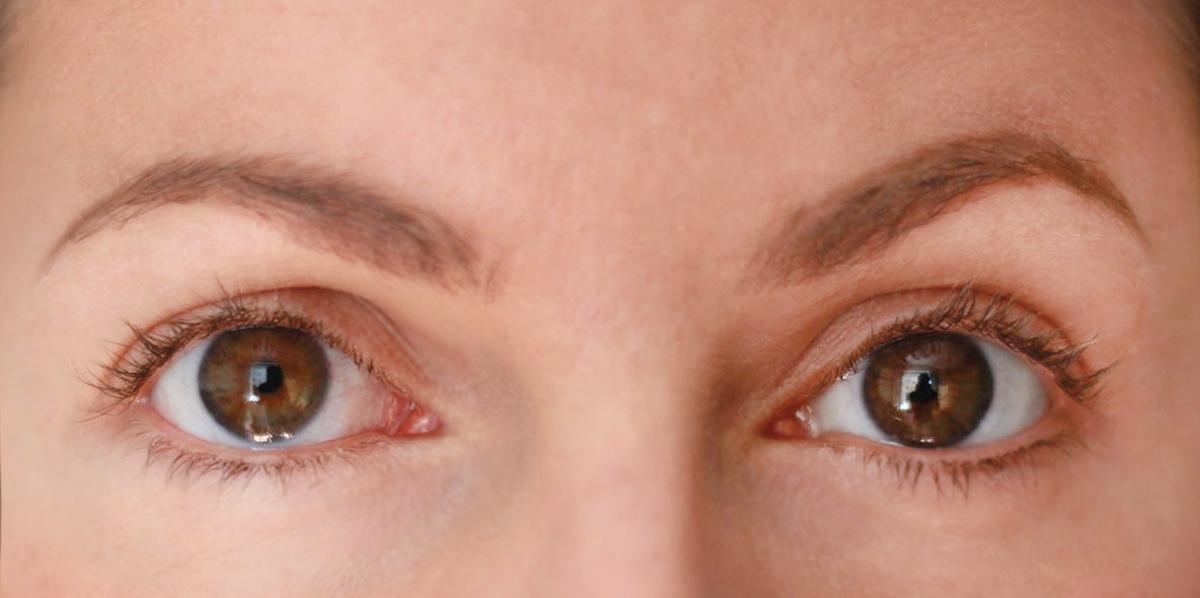 20160627-la-mer-the-lifitng-eye-serum-vorher-nachher